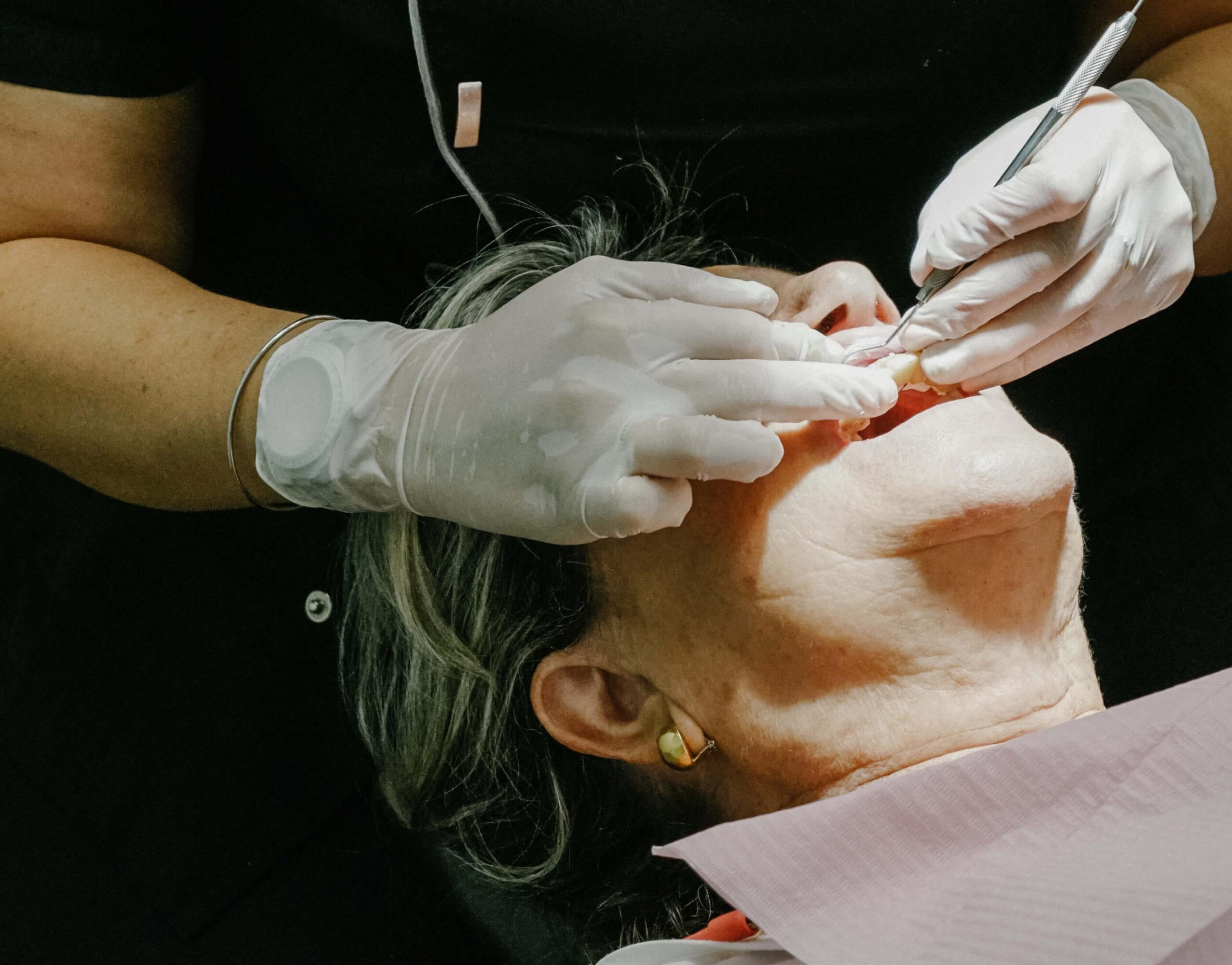 tratamiento dental pieza scaled